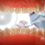 ekskawator stomatologiczny