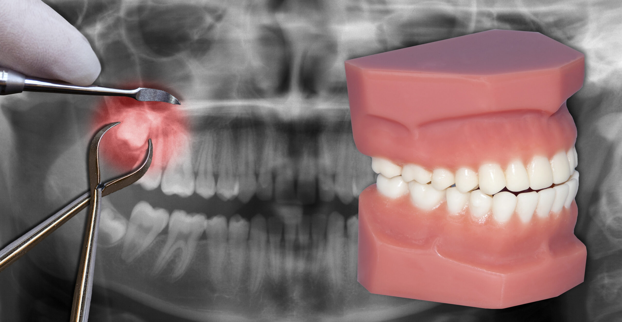 usuwanie zęba mądrości